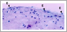 """Endoarterial biopsy during """"early rejection"""" showing minimal reactive endothelial cell (E) changes, with rounded, plump nuclei."""