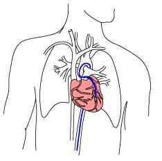 coronary_artery_cropped3