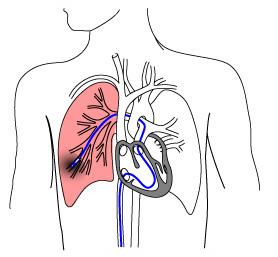 lung_biopsy_2